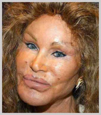 jocelyn-wildenstein-horror.jpg